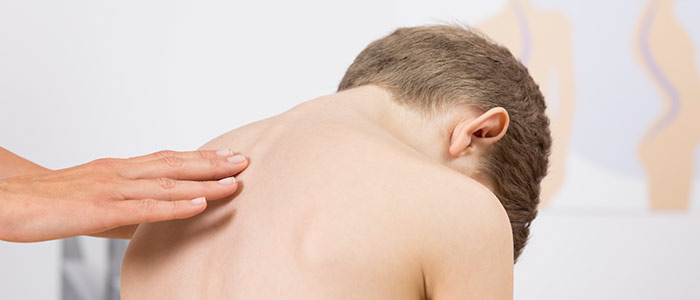 Chiropractic Care in Greenville For Scoliosis Relief